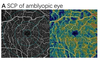 Effect of amblyopia treatment on macular microvasculature in children with anisometropic amblyopia using optical coherence tomographic angiography