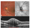 Retinal hemangioblastoma vascular detail elucidated on swept source optical coherence tomography angiography