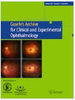 Enlargement of polypoidal choroidal vasculopathy lesion without exudative findings assessed in en face optical coherence tomography images