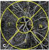 Optical coherence tomography angiography at the acute phase of optic disc edema