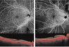 Widefield Optical Coherence Tomography Angiography in Diabetic Retinopathy