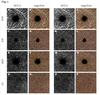 Macular perfusion analysed by optical coherence tomography angiography after uncomplicated phacoemulsification: benefits beyond restoring vision