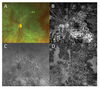 Swept source OCTA reveals a link between choriocapillaris blood flow and vision loss in a case of tubercular serpiginous-like choroiditis