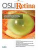 Widefield SS-OCTA for Localization of Retinal Nematode in Diffuse Unilateral Subacute Neuroretinitis