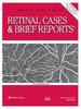 Retinal racemose hemangioma (retinal arteriovenous communication) diagnosed and managed with multimodal imaging