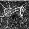 Enhanced vessel characterization in optical coherence tomograogphy angiography
