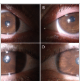 Ocular albinism with mutation in GPR143: Findings in wide-field autofluorescence and optical coherence tomography