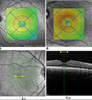 Using OCT Fixation Shift to Assess Eccentric Fixation in Children With Residual Amblyopia