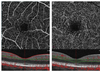 Optical Coherence Tomography Angiography Evaluation of Retinal Microvasculature Before and After Carotid Angioplasty and Stenting