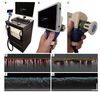 Optical coherence tomography correlates multiple measures of tissue damage following acute burn injury