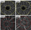 Parafoveal vessel changes in primary open-angle glaucoma and normal-tension glaucoma using optical coherence tomography angiography
