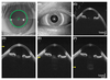 High-Speed, Long-Range Swept-Source Optical Coherence Tomography for the Anterior Segment of the Eye