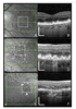 Optical Coherence Tomography Signs of Early Atrophy in Age-related Macular Degeneration: Inter-Reader Agreement. CAM Report 6