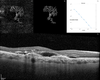 Quantitative optical coherence tomography angiography biomarkers for neovascular age-related macular degeneration in remission