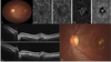 Optical coherence tomography angiography in best vitelliform macular dystrophy