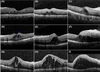 Total venous nature of retinal deep capillary plexus inferred by continuity of prominent middle limiting membrane sign in optical coherence tomography