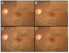 Enface vitreous OCT 'worm holes': A novel finding in a patient with diffuse unilateral subacute neuroretinitis (DUSN