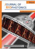 In vivo monitoring of thrombosis in mice by optical coherence tomography