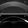 New algorithm for corneal densitometry assessment based on anterior segment optical coherence tomography
