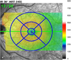 Optical coherence tomography automated layer segmentation of macula after retinal detachment repair