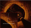 Intrinsic calcification angle: a novel feature of the vulnerable coronary plaque in patients with type 2 diabetes: an optical coherence tomography study