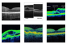 OctNET: A Lightweight CNN for Retinal Disease Classification from Optical Coherence Tomography Images