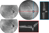Spectrally encoded coherence tomography and reflectometry: Simultaneous en face and cross‐sectional imaging at 2 gigapixels per second