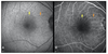 Macular thickness analysis and resolution of subretinal drusenoid deposits with optical coherence tomography in vitamin A deficiency-related retinopathy