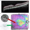 Analyzing the impact of glaucoma on the macular architecture using spectral-domain optical coherence tomography