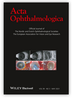 Analysis of Iris volume using swept-source optical coherence tomography in patients with type 2 diabetes mellitus