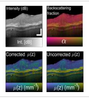 Layer-based, depth-resolved computation of attenuation coefficients and backscattering fractions in tissue using optical coherence tomography