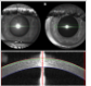 Anterior segment optical coherence tomography scanning protocols and corneal thickness repeatability