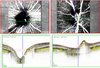 Analysis of peripapillary vessel density and Bruch's membrane opening-based neuroretinal rim parameters in glaucoma using OCT and OCT-angiography