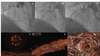 Longitudinal Stent Deformation: Precise Diagnosis With Optical Coherence Tomography