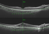 Choroidal thickness measured using swept-source optical coherence tomography is reduced in patients with type 2 diabetes