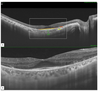 Swept-source optical coherence tomography changes and visual acuity among Palestinian retinitis Pigmentosa patients: a cross-sectional study