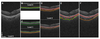 Automated segmentation of choroidal layers from 3-dimensional macular optical coherence tomography scans