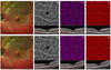 Optical Coherence Tomography Angiography Findings After Intravitreal Ranibizumab in Patients With Coats Disease