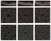 Comparison of Retinal Microvasculature in Patients With Alzheimer's Disease and Primary Open-Angle Glaucoma by Optical Coherence Tomography Angiography