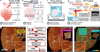 SLIME: robust, high-speed 3D microvascular mapping