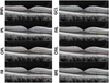 Impacts of age and sex on retinal layer thicknesses measured by spectral domain optical coherence tomography with Spectralis