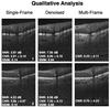 A Deep Learning Approach to Denoise Optical Coherence Tomography Images of the Optic Nerve Head
