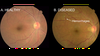 Google researchers use deep learning to detect diabetic retinopathy with upwards of 90 percent accuracy