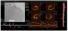 Automatic Coregistration Between Coronary Angiography and Intravascular Optical Coherence Tomography