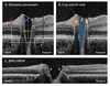 Feasibility and Repeatability of Handheld Optical Coherence Tomography in Children With Craniosynostosis