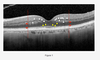 Early Retinal Changes by OCT Angiography and Multifocal Electroretinography in Diabetes