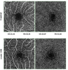 Morphological changes in and quantitative analysis of macular retinal microvasculature by optical coherence tomography angiography in hypertensive retinopathy