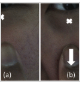 Morphological parametric mapping of 21 skin sites throughout the body using optical coherence tomography