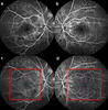Optical coherence tomography angiography in diabetic retinopathy: a review of current applications