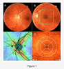 Spectral-Domain Optical Coherence Tomography Assessment in Treatment-Naïve Patients with Clinically Isolated Syndrome and Different Multiple Sclerosis Types: Findings and Relationship with the Disability Status